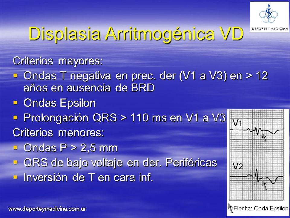Displasia Arritmogénica VD