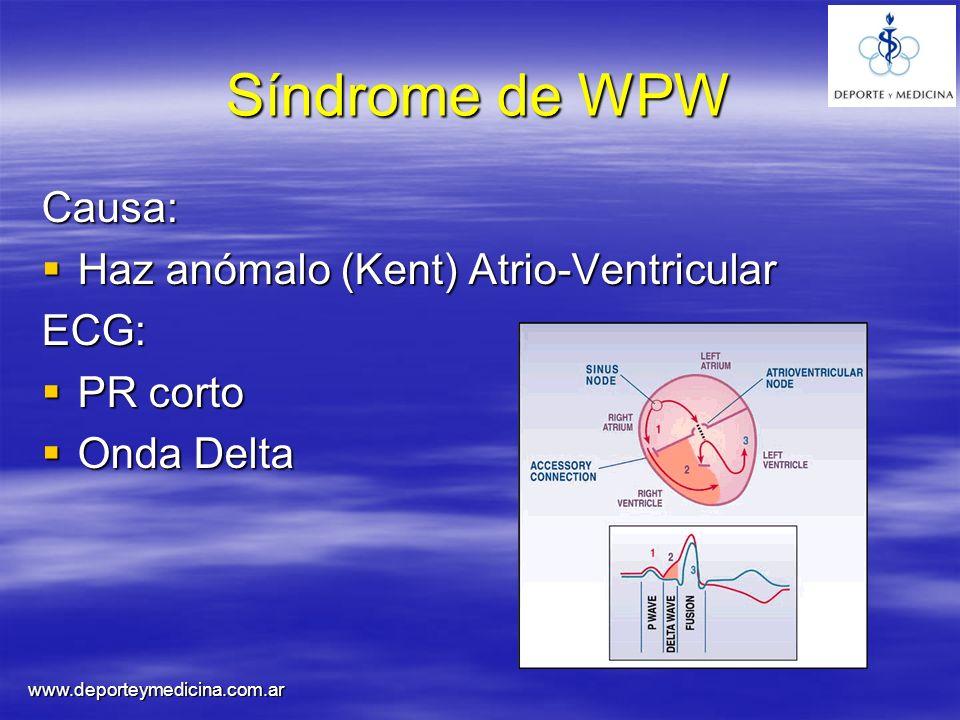Síndrome de WPW Causa: Haz anómalo (Kent) Atrio-Ventricular ECG: