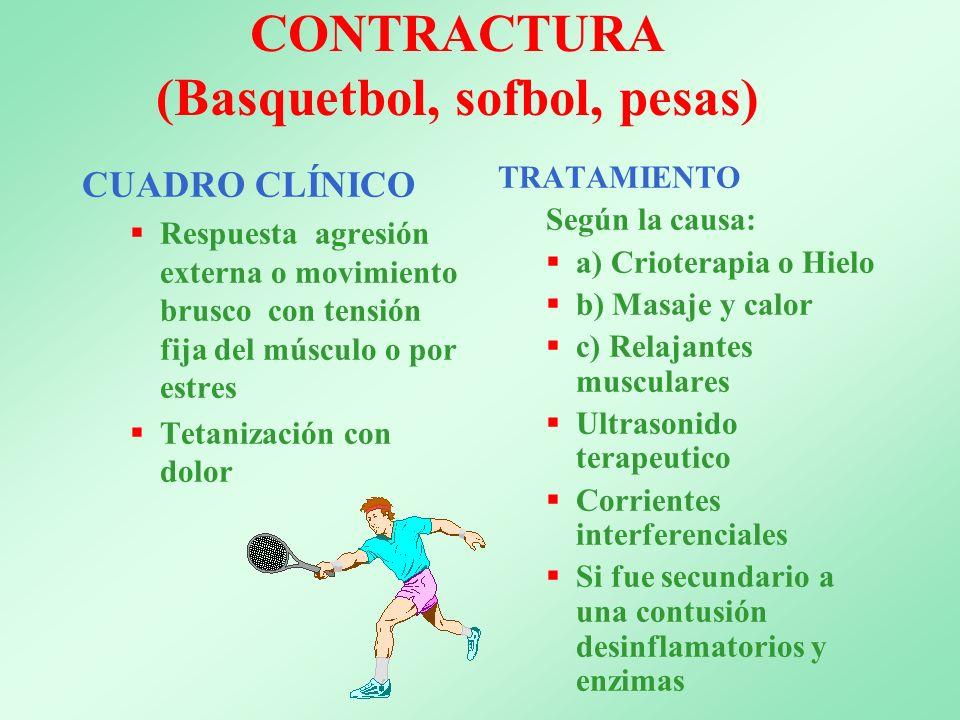 CONTRACTURA (Basquetbol, sofbol, pesas)