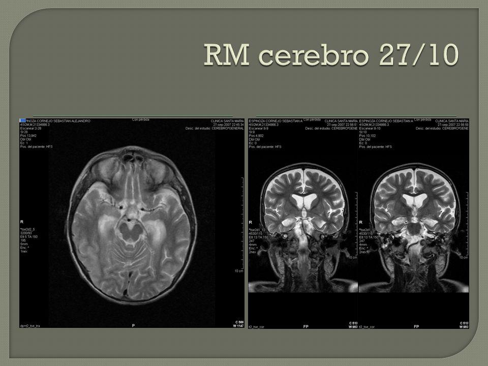 RM cerebro 27/10 Alta señal en T2 eco spin y alteración morfológica de los hipocampos.