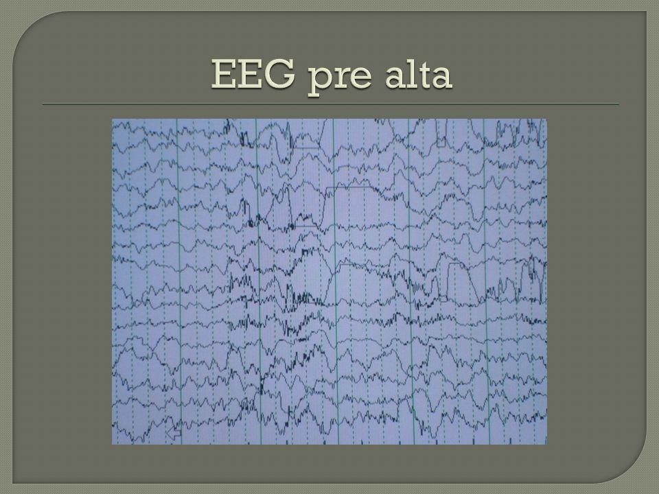 EEG pre alta