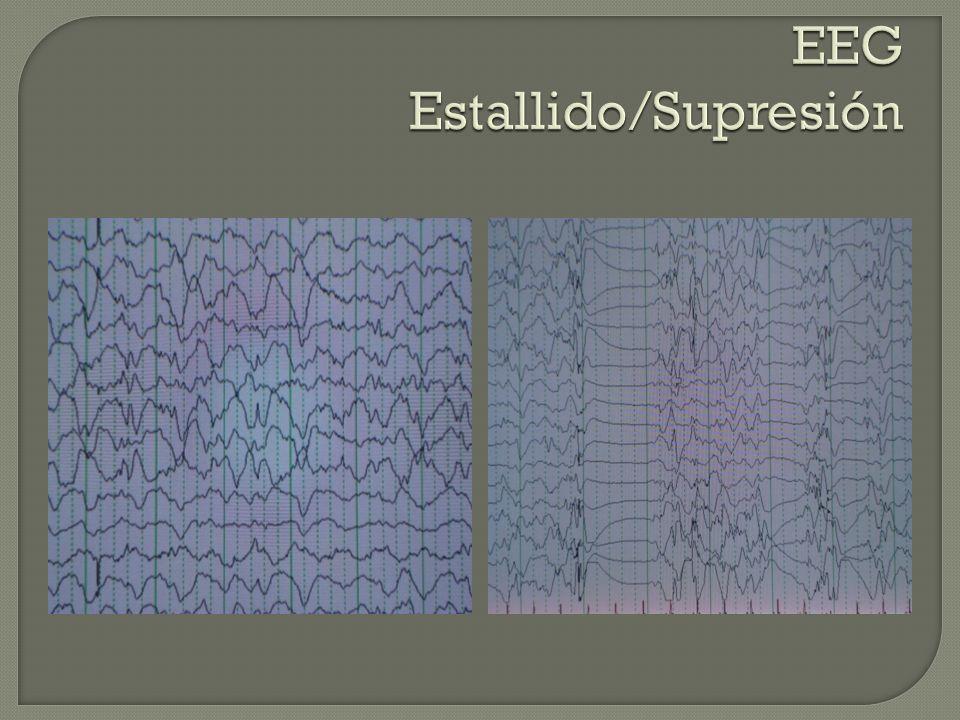 EEG Estallido/Supresión