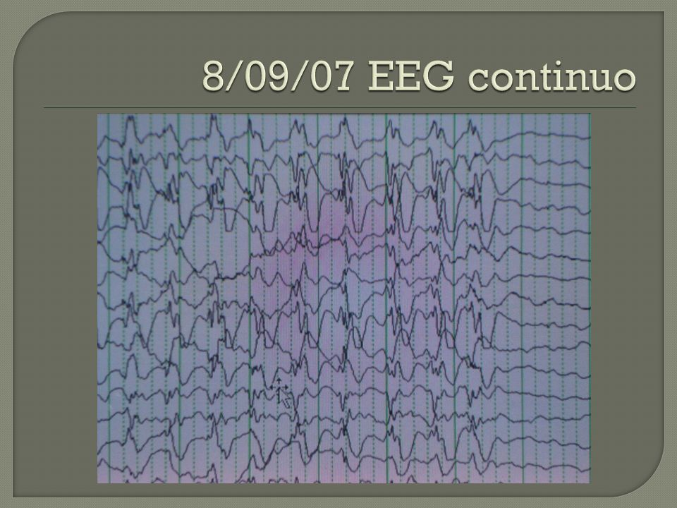8/09/07 EEG continuo