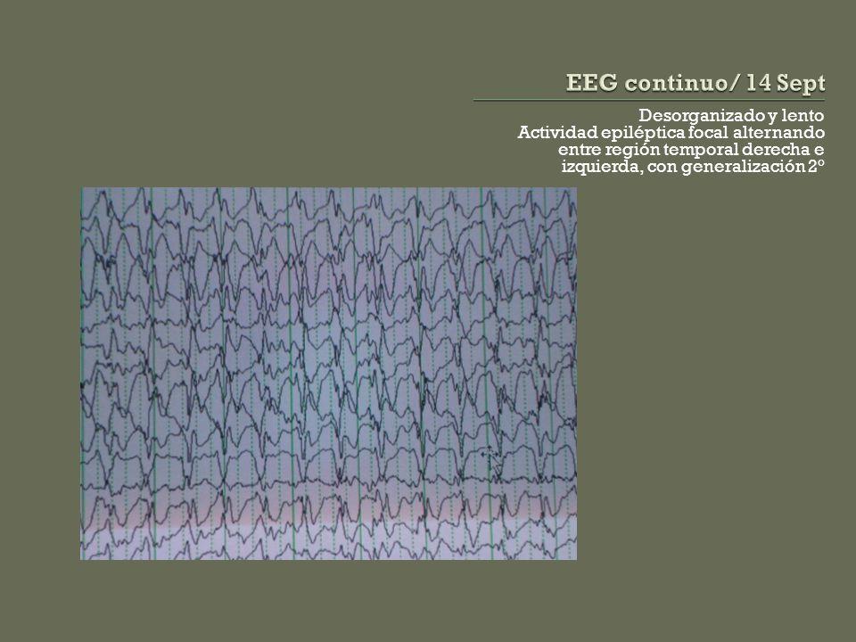 EEG continuo/ 14 Sept Desorganizado y lento