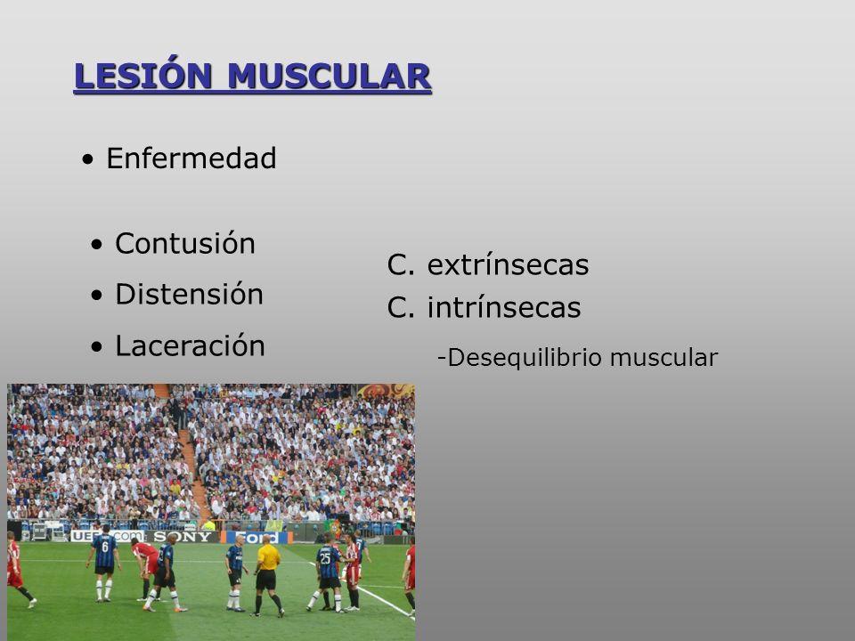 LESIÓN MUSCULAR Enfermedad Contusión Distensión C. extrínsecas