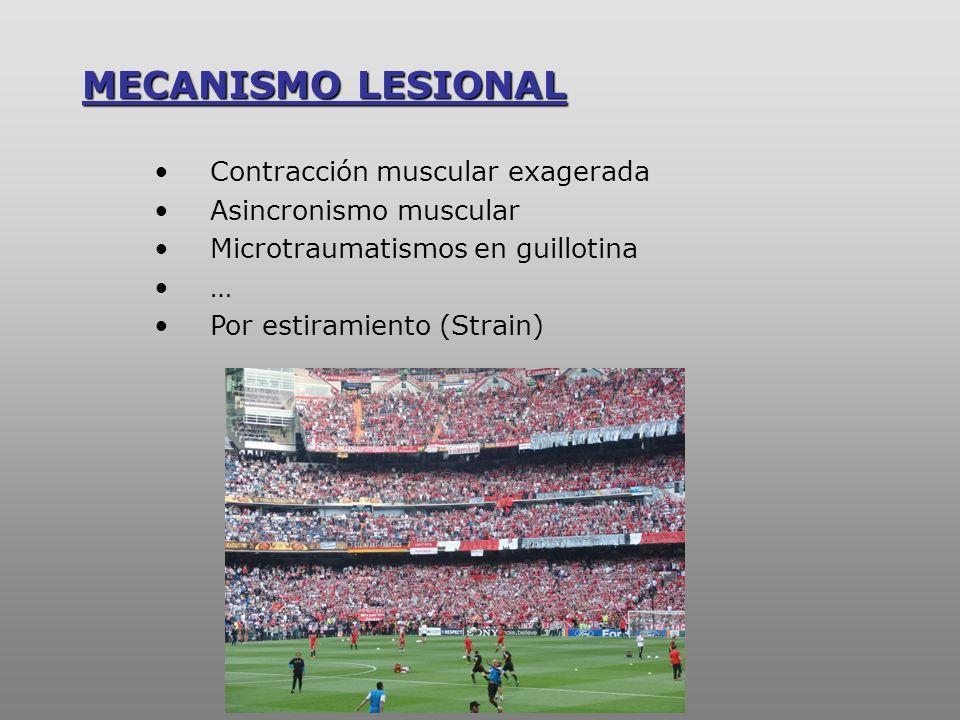 MECANISMO LESIONAL Contracción muscular exagerada