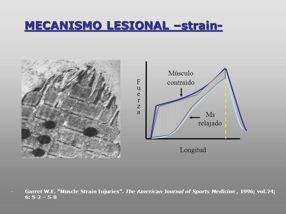 MECANISMO LESIONAL –strain-
