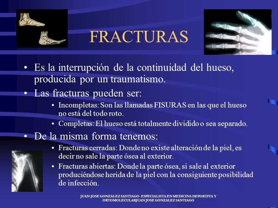 FRACTURAS Es la interrupción de la continuidad del hueso, producida por un traumatismo. Las fracturas pueden ser: