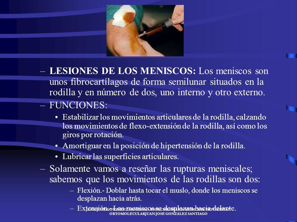 LESIONES DE LOS MENISCOS: Los meniscos son unos fibrocartílagos de forma semilunar situados en la rodilla y en número de dos, uno interno y otro externo.