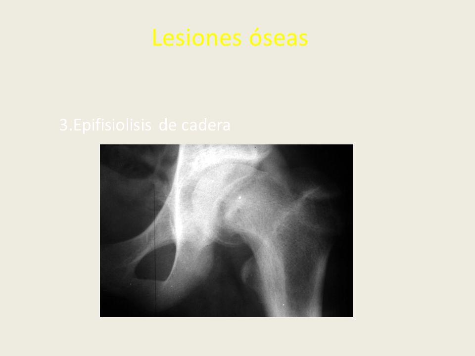 Lesiones óseas 3.Epifisiolisis de cadera