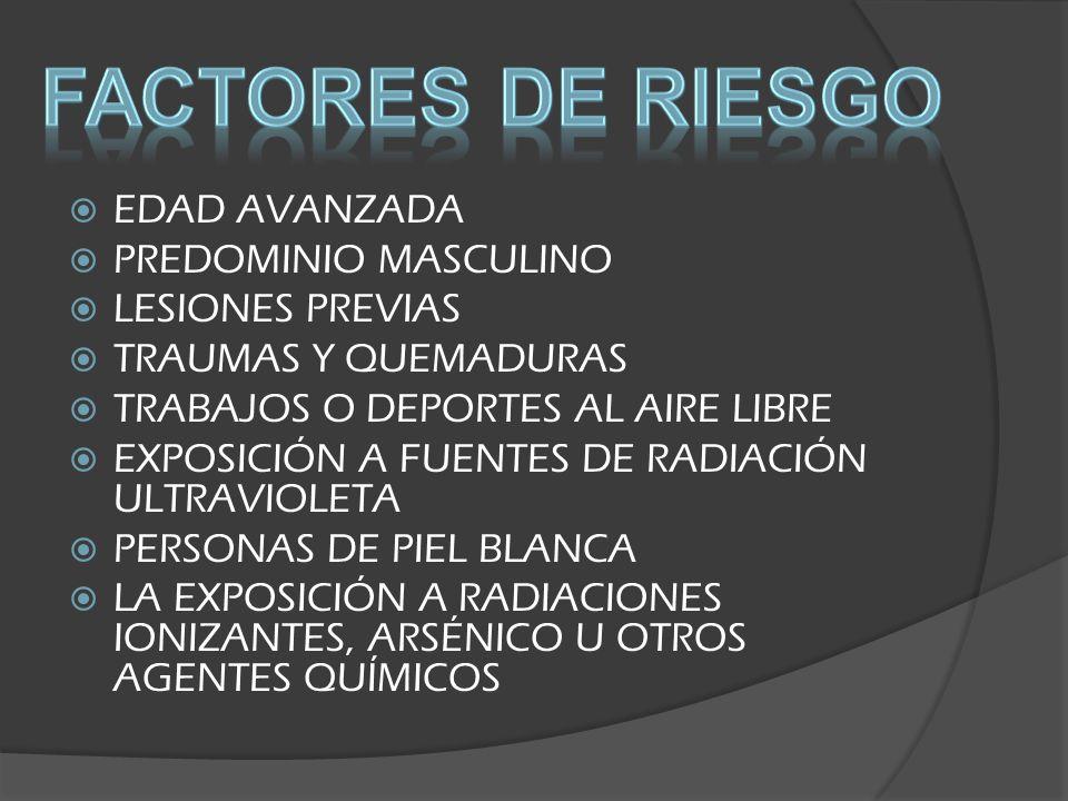 Factores de riesgo EDAD AVANZADA PREDOMINIO MASCULINO LESIONES PREVIAS