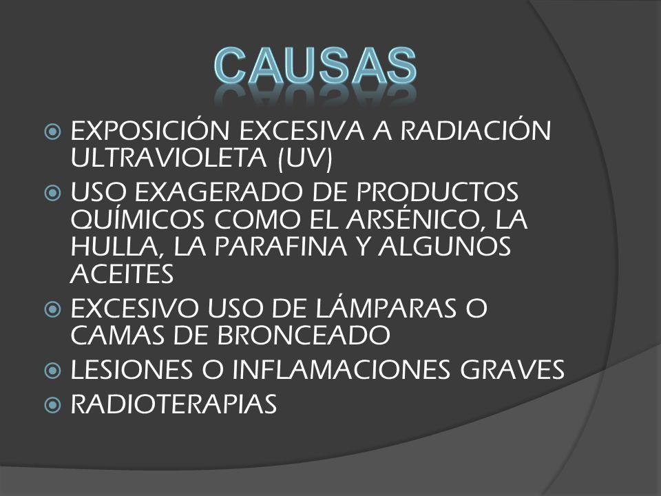 CAUSAS EXPOSICIÓN EXCESIVA A RADIACIÓN ULTRAVIOLETA (UV)