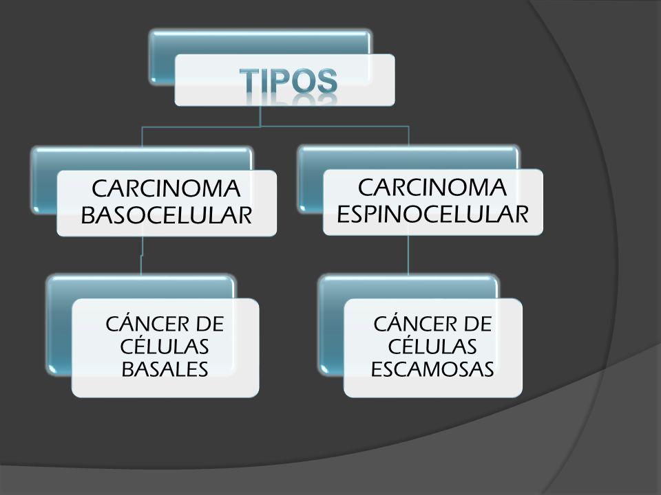 TIPOS CARCINOMA ESPINOCELULAR CARCINOMA BASOCELULAR