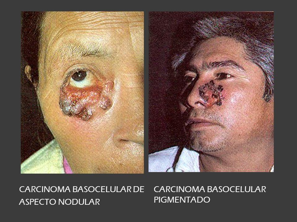 CARCINOMA BASOCELULAR DE
