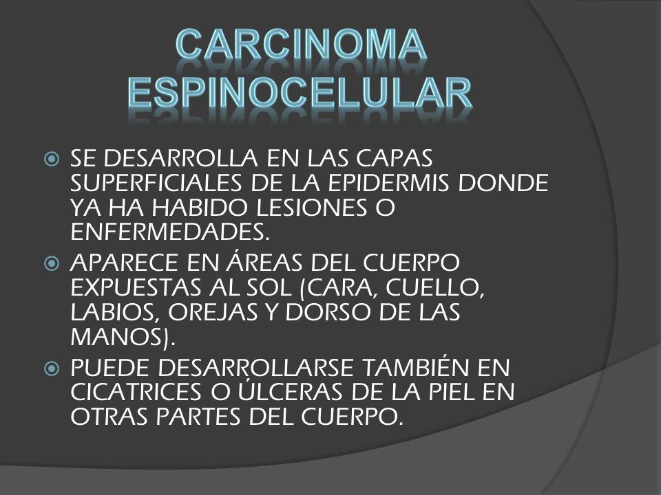 Carcinoma espinocelular