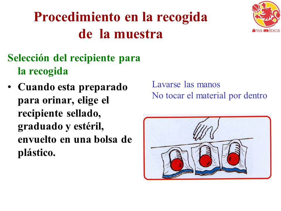 Procedimiento en la recogida de la muestra