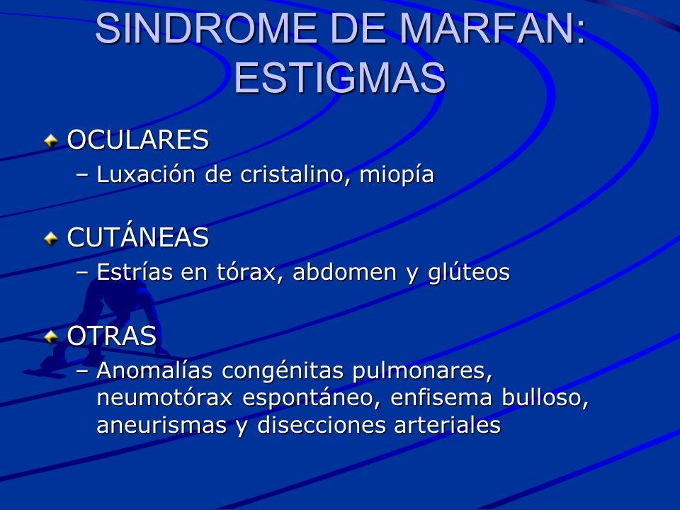 SINDROME DE MARFAN: ESTIGMAS