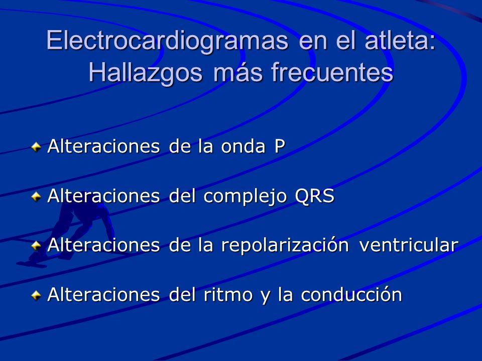 Electrocardiogramas en el atleta: Hallazgos más frecuentes