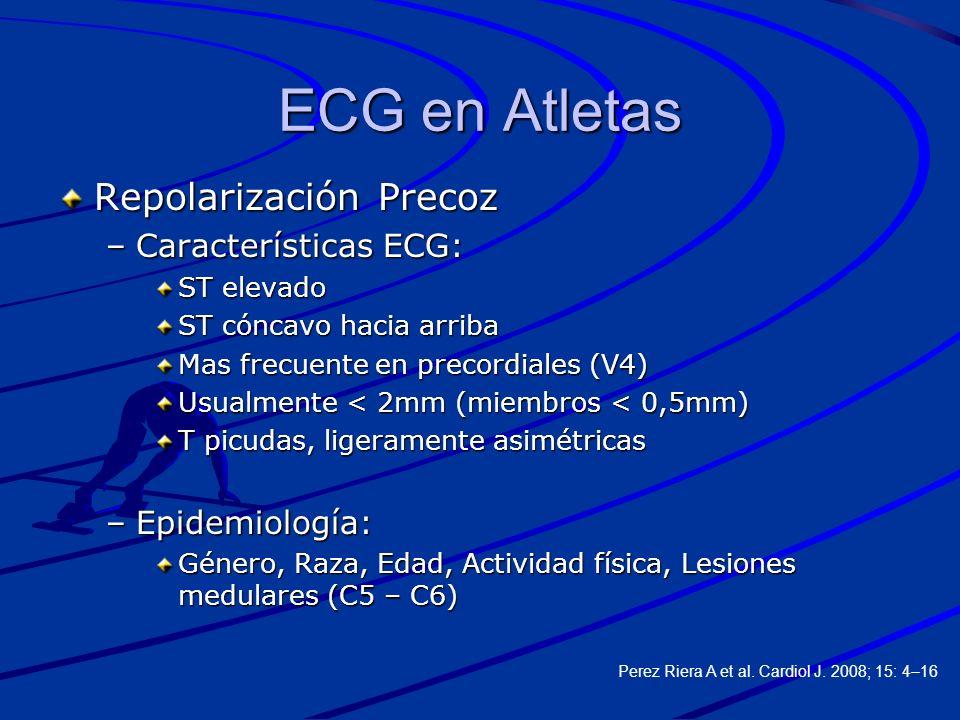 ECG en Atletas Repolarización Precoz Características ECG: