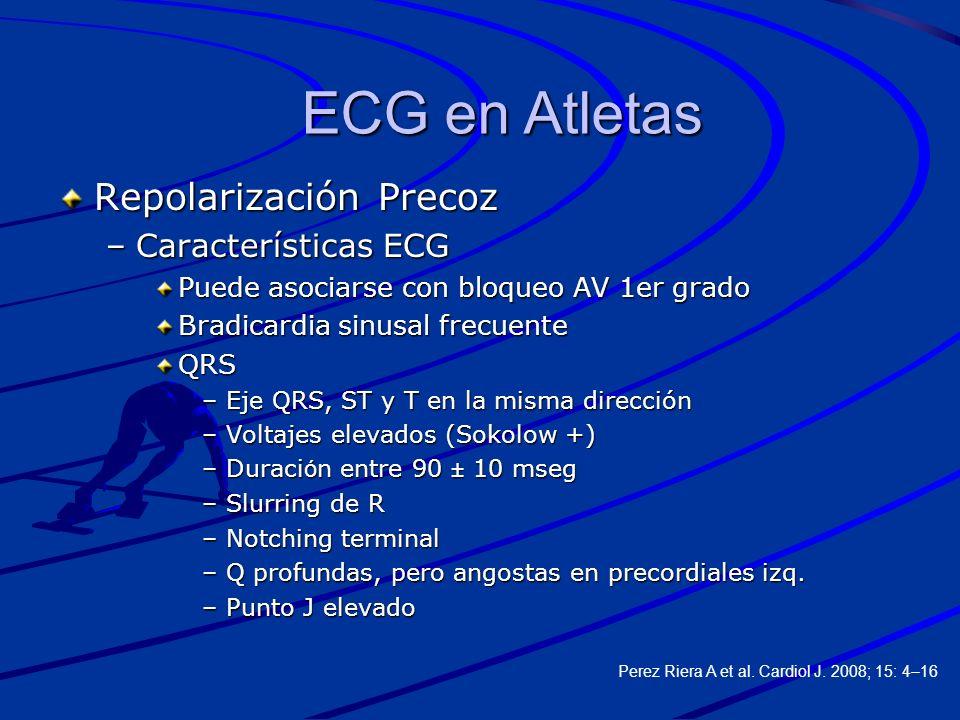 ECG en Atletas Repolarización Precoz Características ECG