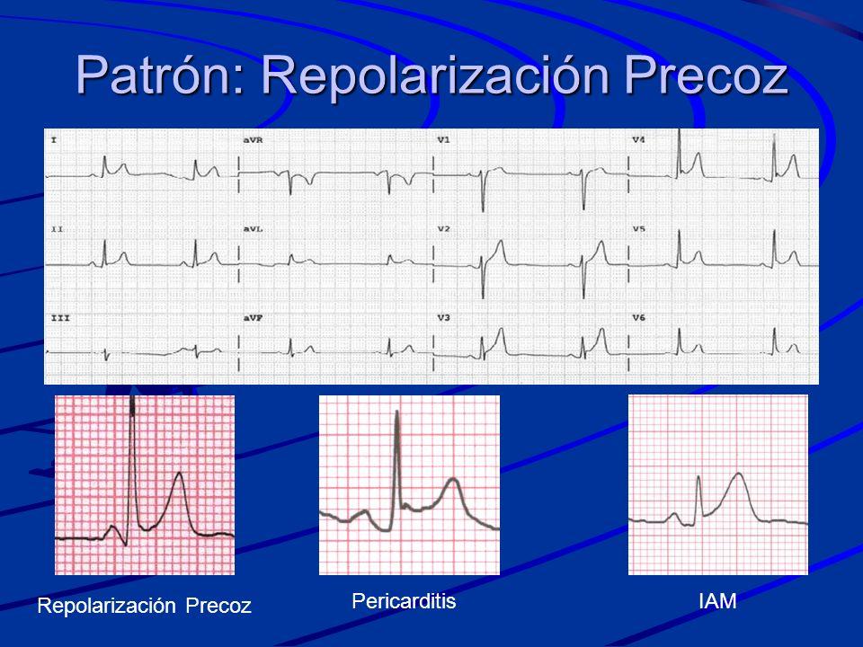 Patrón: Repolarización Precoz