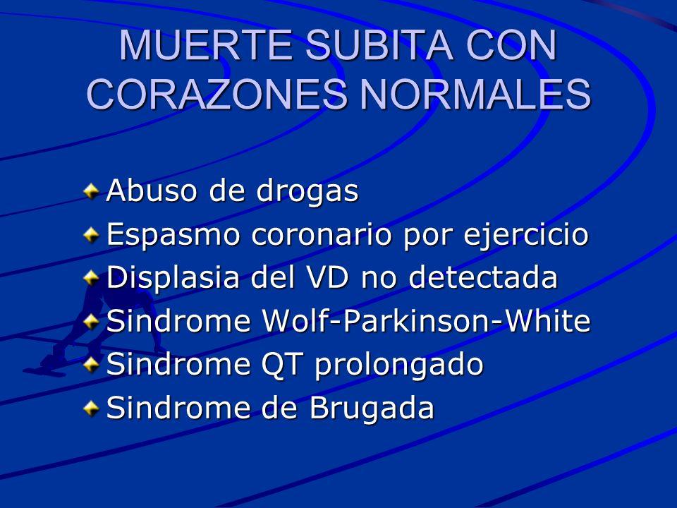 MUERTE SUBITA CON CORAZONES NORMALES