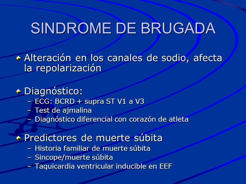 SINDROME DE BRUGADA Alteración en los canales de sodio, afecta la repolarización. Diagnóstico: ECG: BCRD + supra ST V1 a V3.