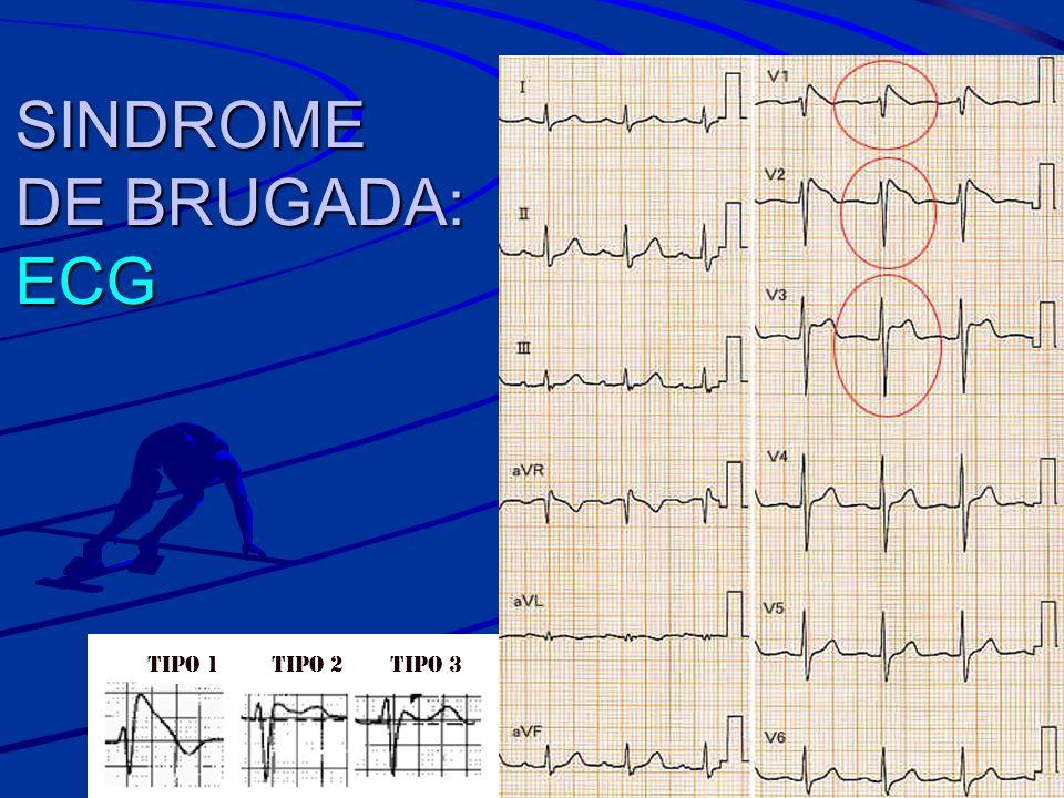 SINDROME DE BRUGADA: ECG