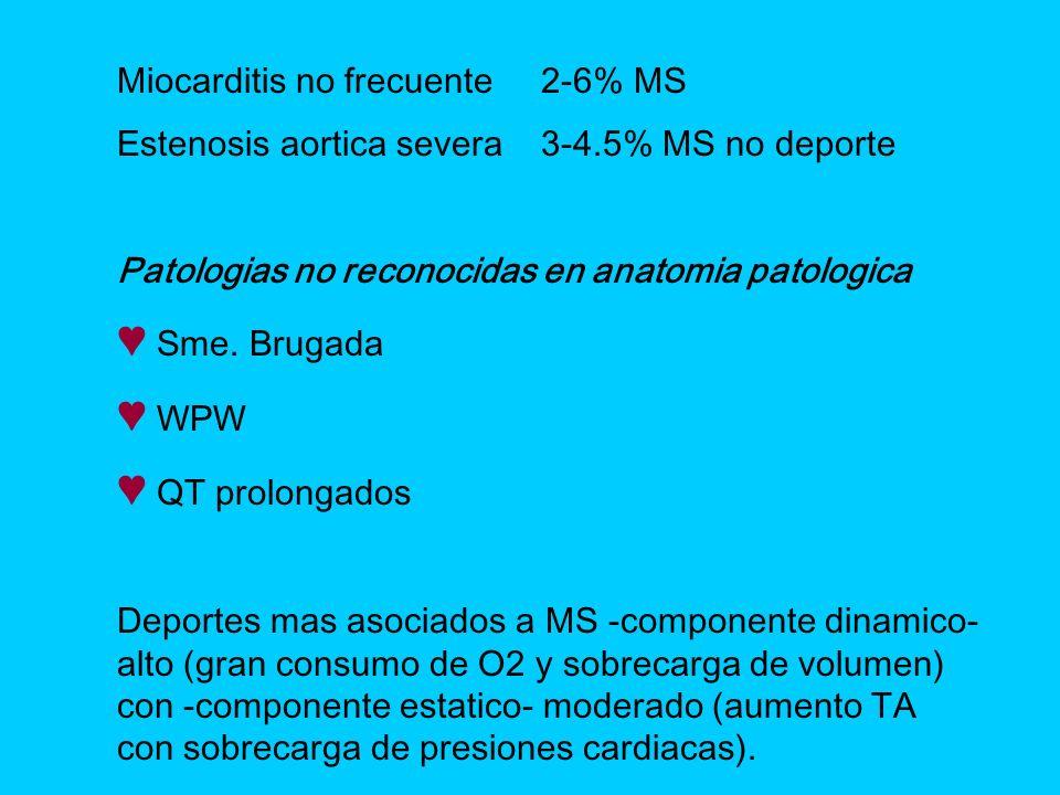 ♥ Sme. Brugada ♥ WPW ♥ QT prolongados Miocarditis no frecuente 2-6% MS