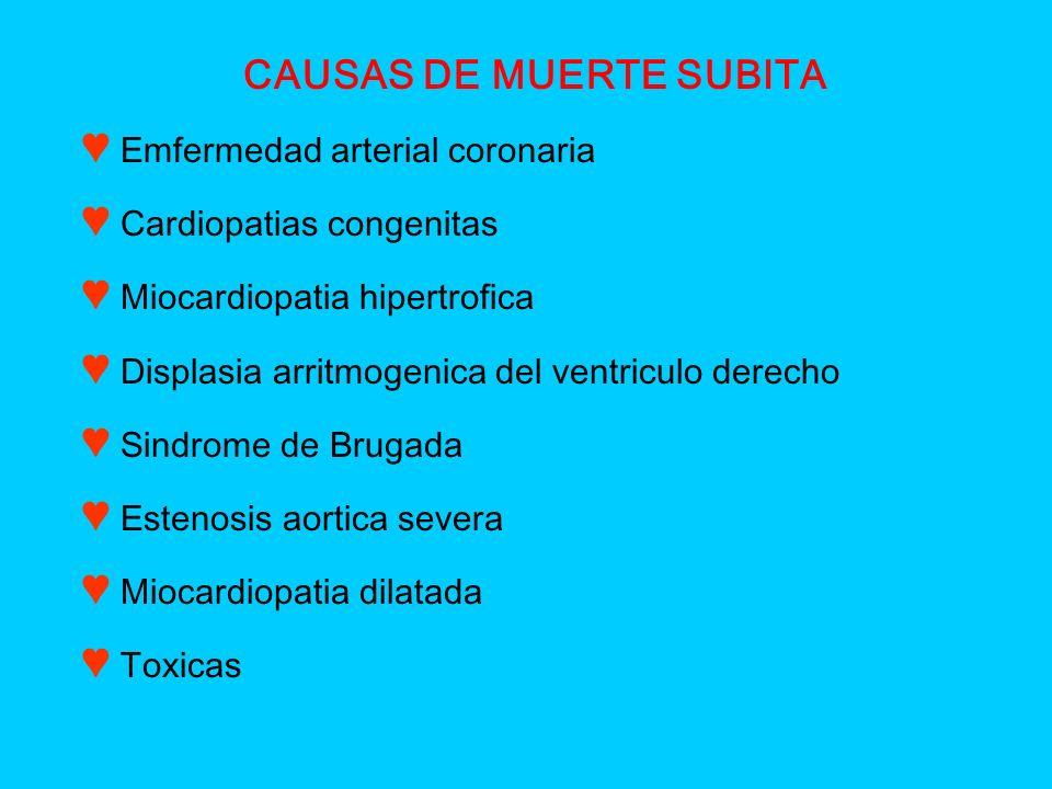 CAUSAS DE MUERTE SUBITA