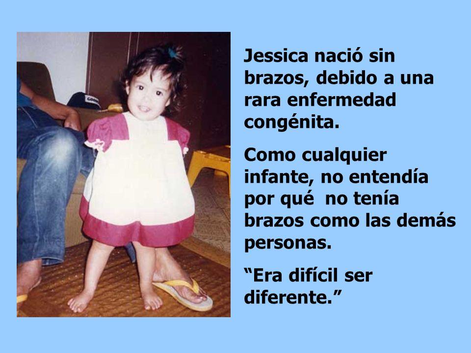 Jessica nació sin brazos, debido a una rara enfermedad congénita.