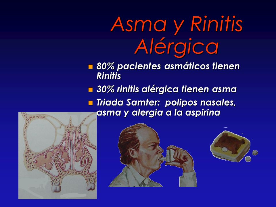 Asma y Rinitis Alérgica