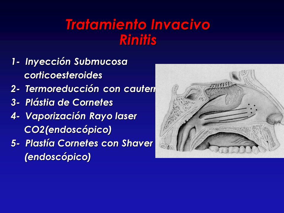 Tratamiento Invacivo Rinitis
