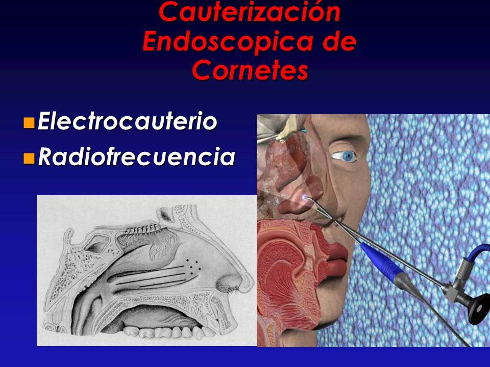 Cauterización Endoscopica de Cornetes