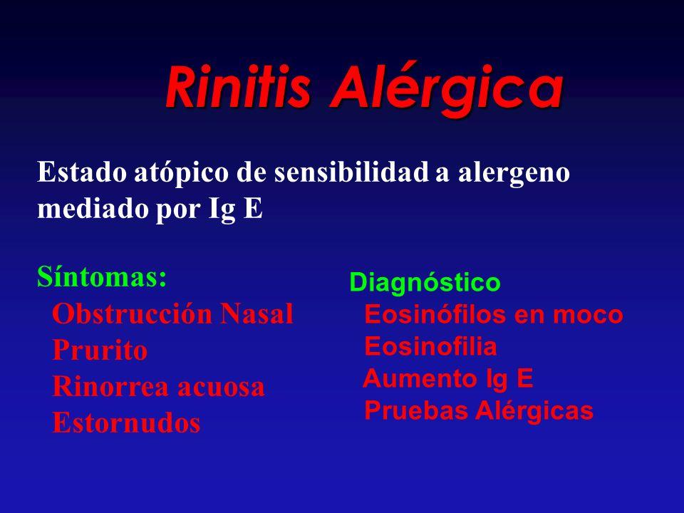 Rinitis Alérgica Estado atópico de sensibilidad a alergeno mediado por Ig E. Síntomas: Obstrucción Nasal.