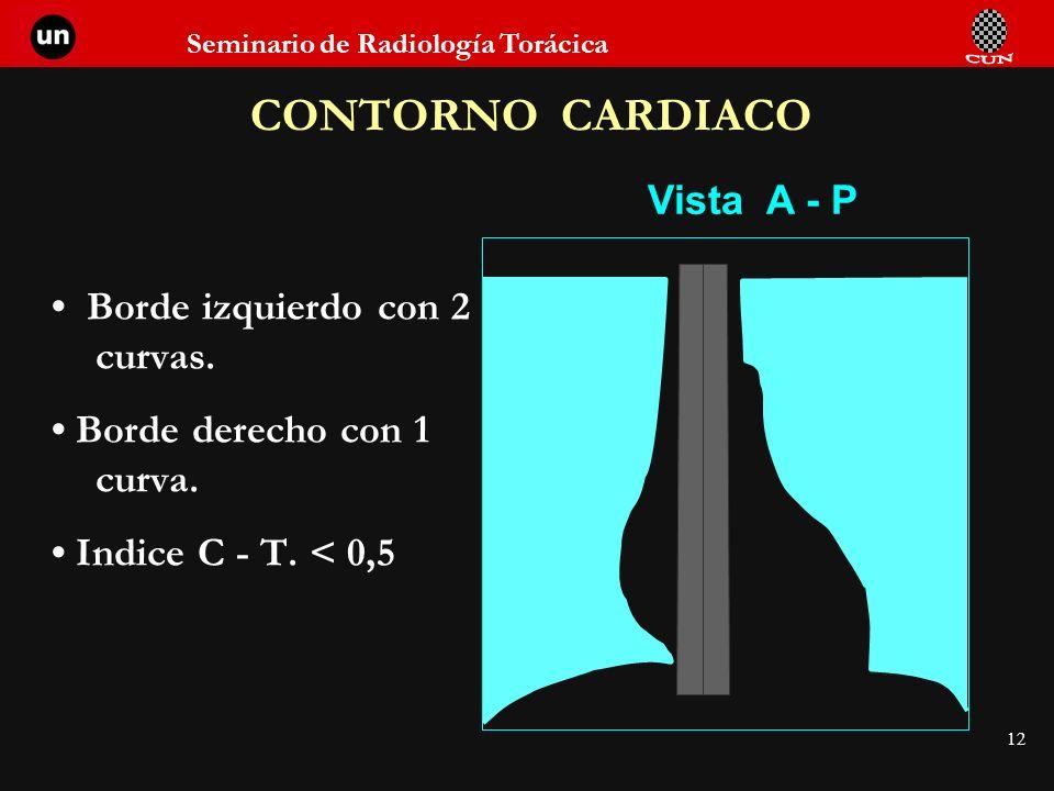 CONTORNO CARDIACO Vista A - P • Borde izquierdo con 2 curvas.