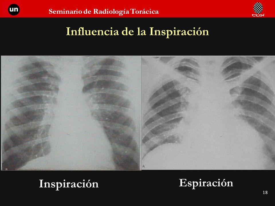 Influencia de la Inspiración