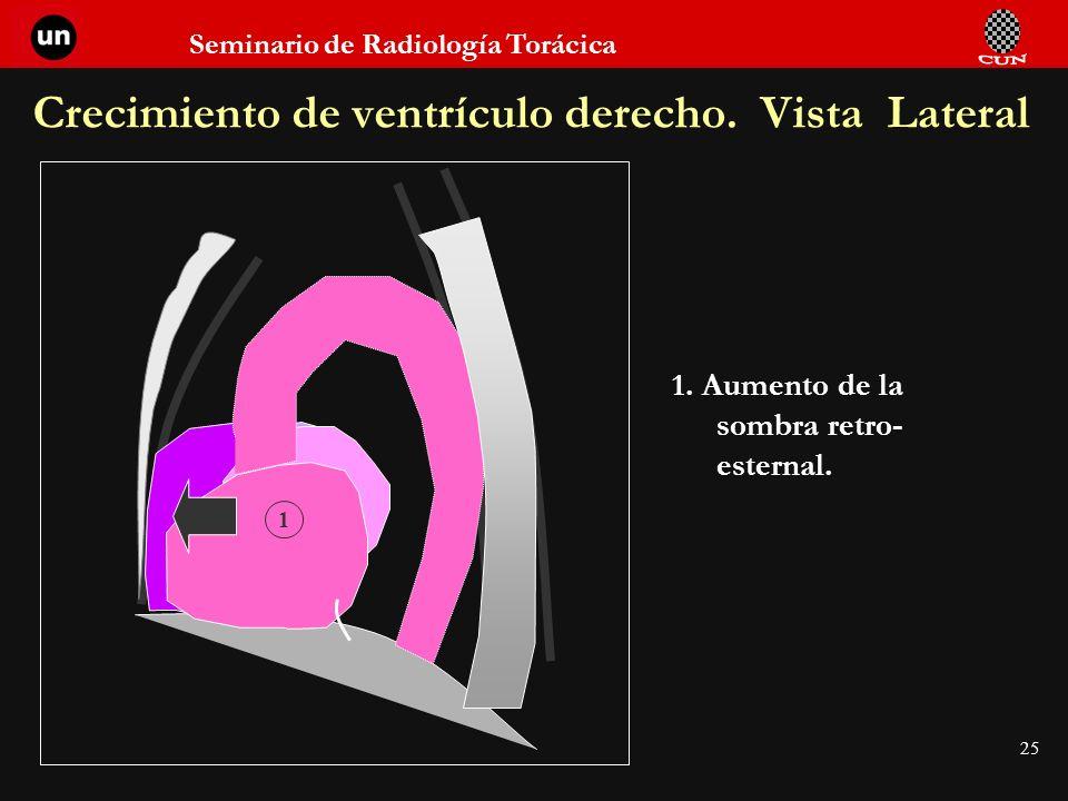 Crecimiento de ventrículo derecho. Vista Lateral