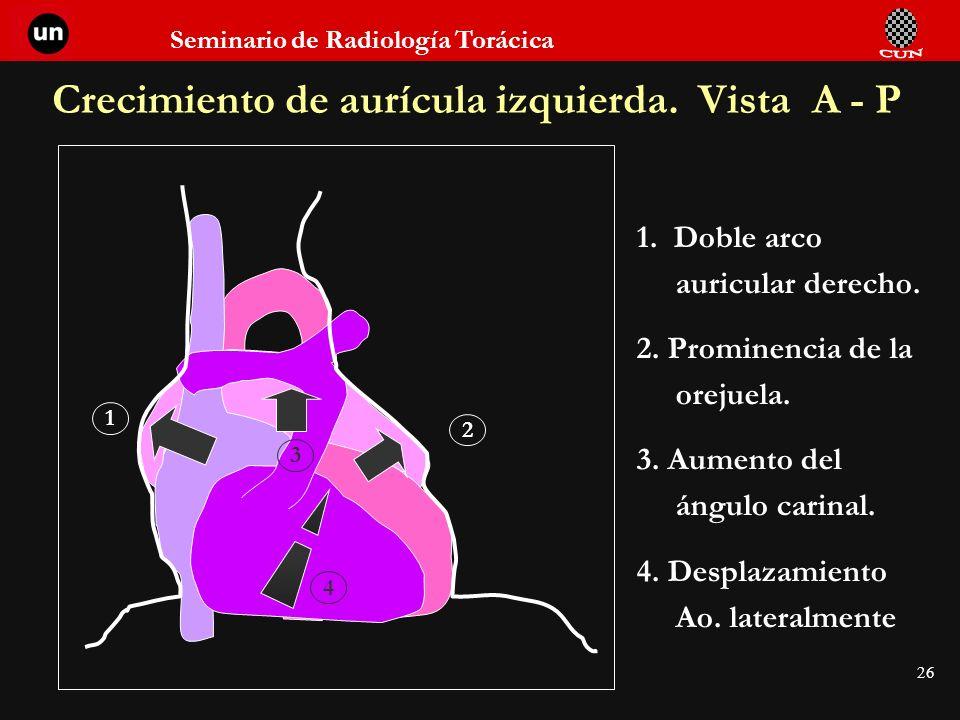 Crecimiento de aurícula izquierda. Vista A - P