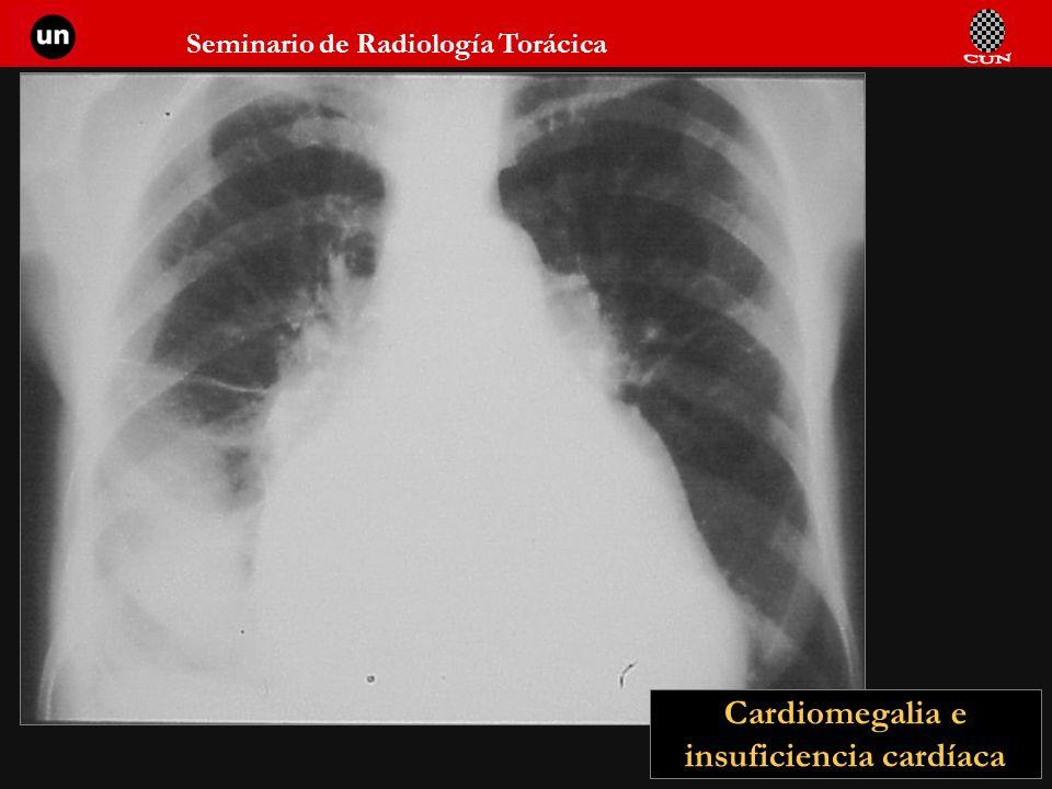 Cardiomegalia e insuficiencia cardíaca