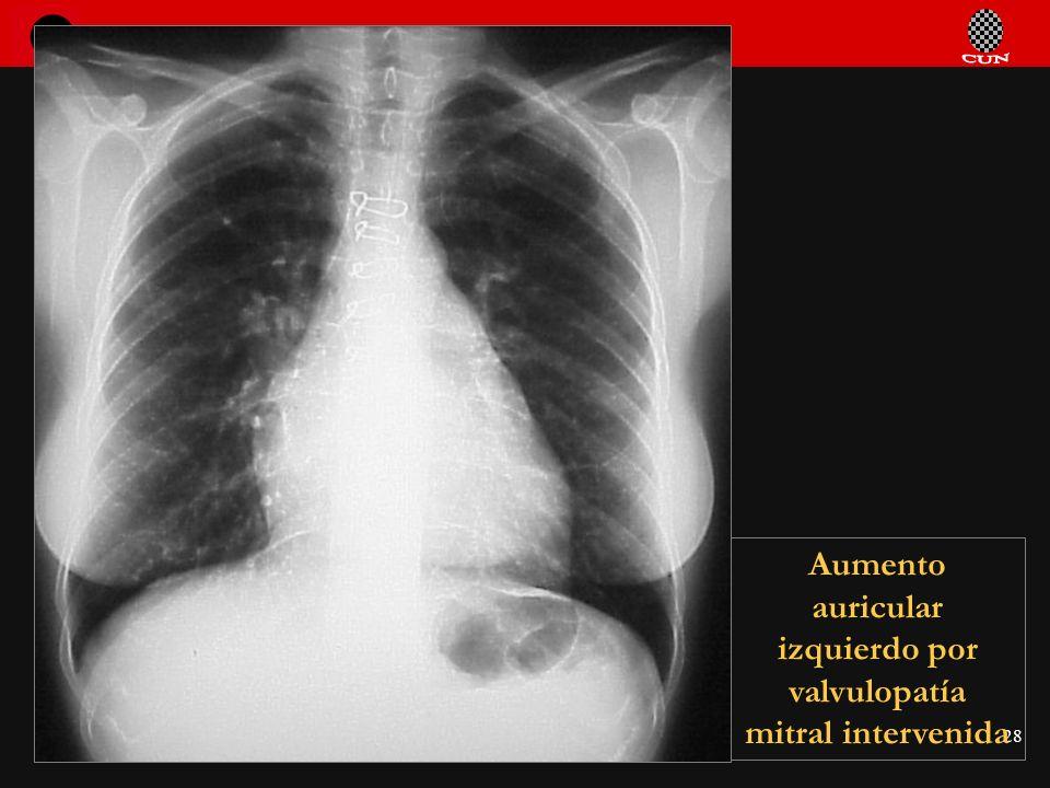 Aumento auricular izquierdo por valvulopatía mitral intervenida