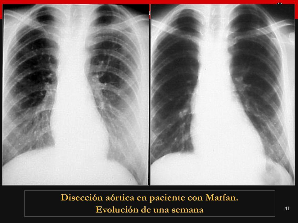 Disección aórtica en paciente con Marfan. Evolución de una semana
