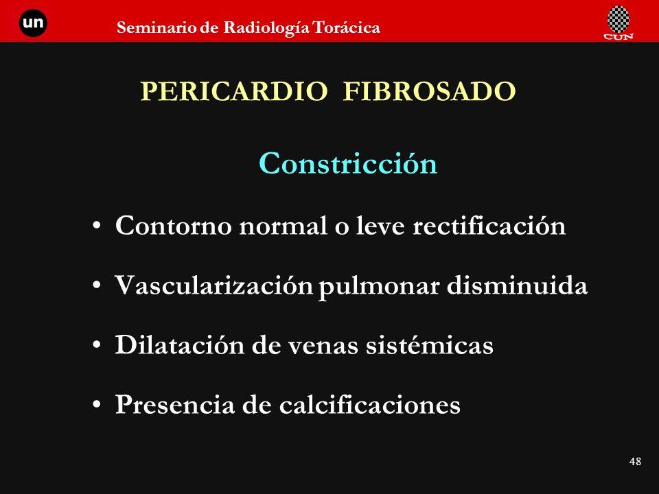 Constricción PERICARDIO FIBROSADO Contorno normal o leve rectificación