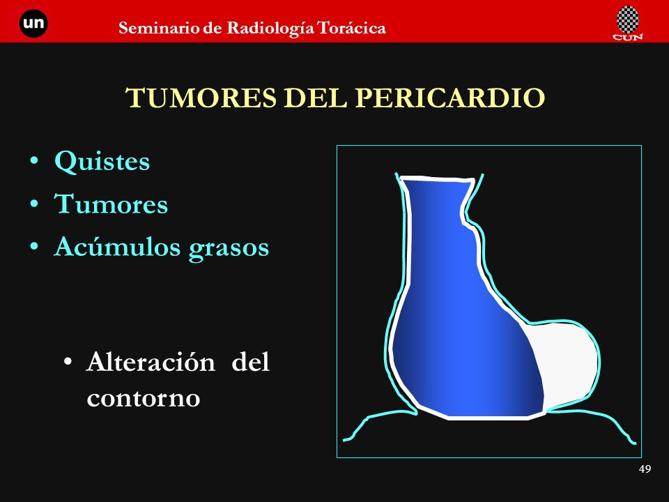 TUMORES DEL PERICARDIO