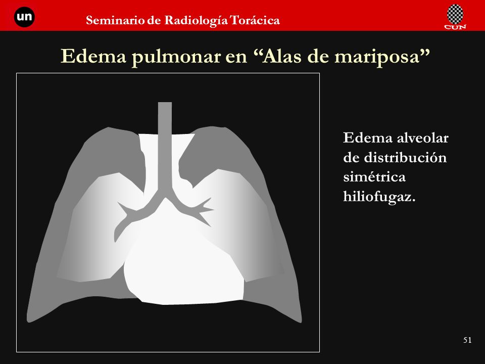 Edema pulmonar en Alas de mariposa