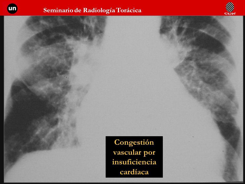 Congestión vascular por insuficiencia cardíaca