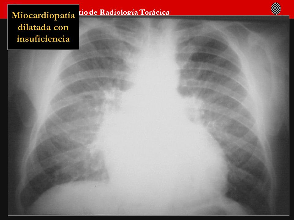 Miocardiopatía dilatada con insuficiencia