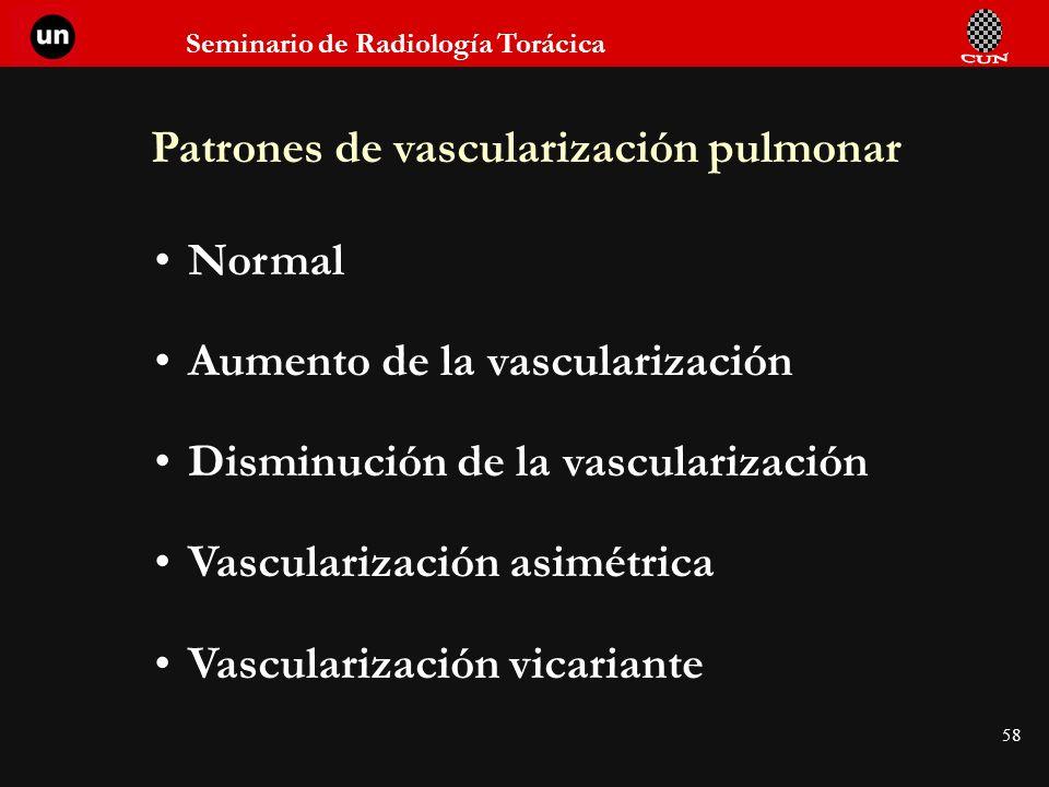 Patrones de vascularización pulmonar