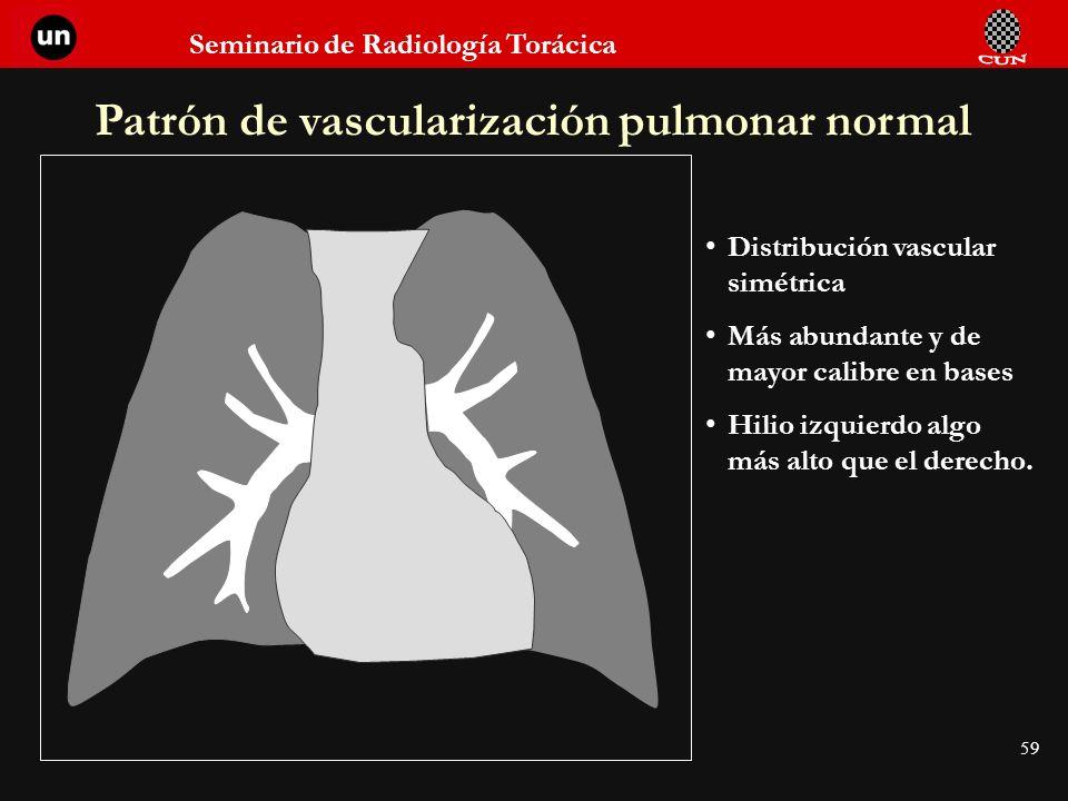 Patrón de vascularización pulmonar normal