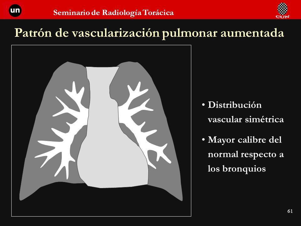 Patrón de vascularización pulmonar aumentada